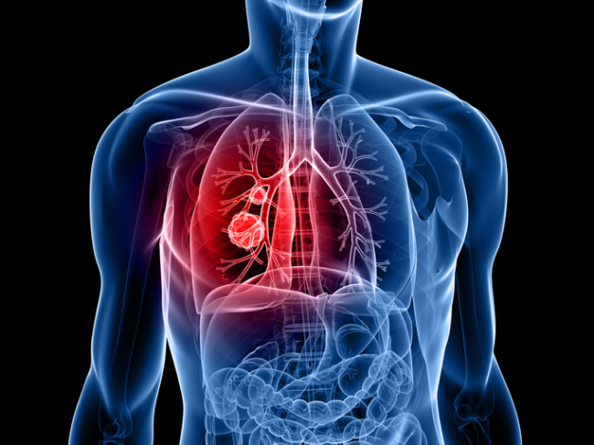 Smoking Is Not The Only Cause of Lung Cancer